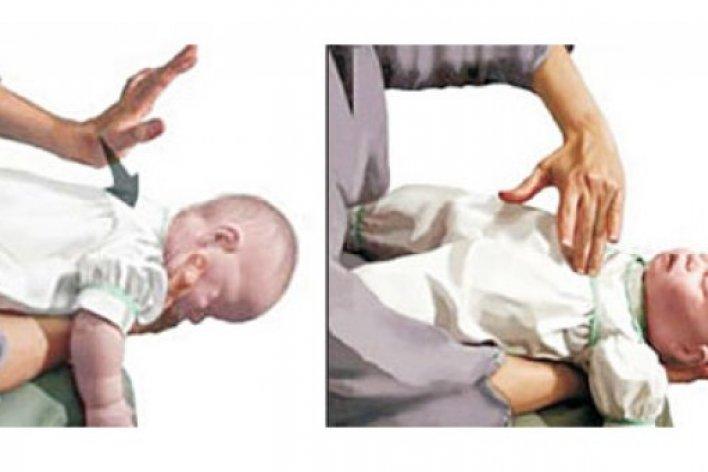 Cách Xử Lý Khi Con Bị Hóc Dị Vật