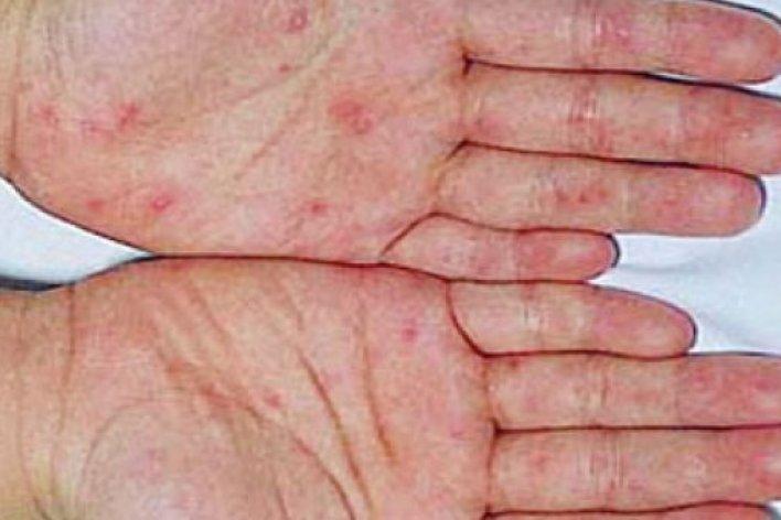 Phân Biệt Tay Chân Miệng Với Sốt Phát Ban Do Virut
