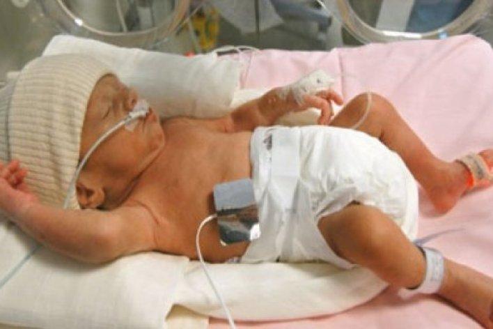 12 Bệnh Lý Nguy Hiểm Ở Trẻ Sinh Non Mẹ Cần Lưu Ý