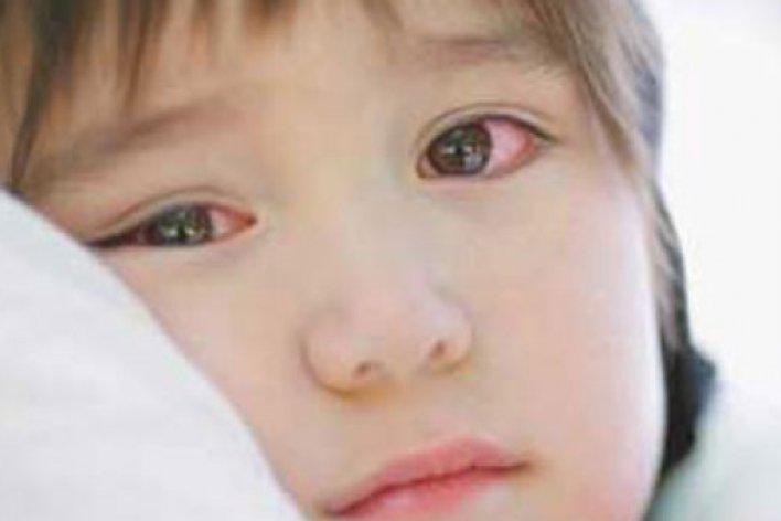 7 Bài Thuốc Dân Gian Trị Đau Mắt Đỏ Hiệu Quả Cho Bé