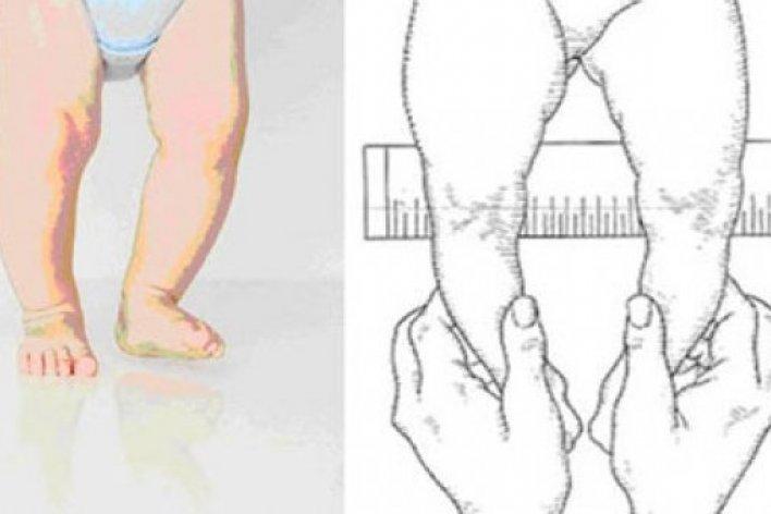 Cách chữa chân vòng kiềng hiệu quả giúp bé không bị xấu tướng đi