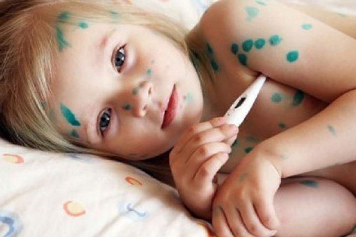 Trẻ Bị Thuỷ Đậu Rồi Có Bị Lại Nữa Không