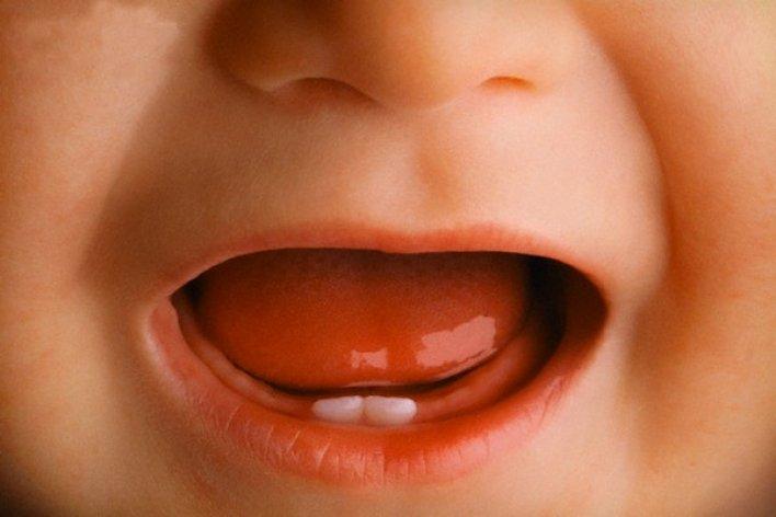 6 điều cần đặc biệt chú ý khi con thay răng