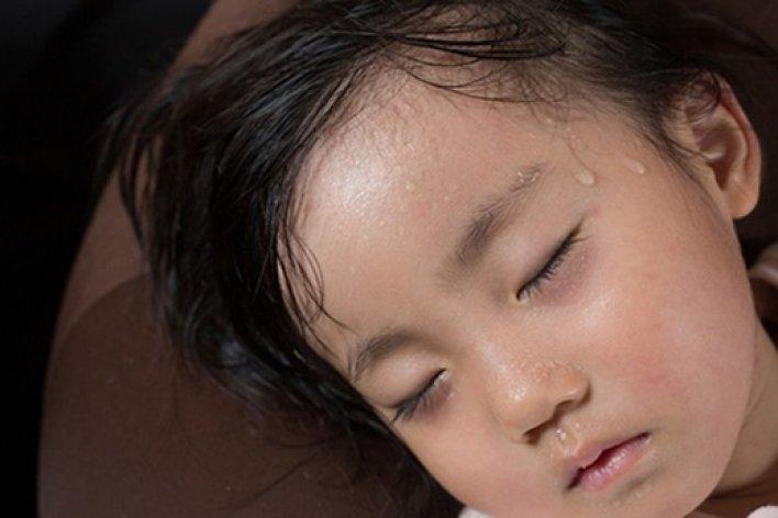 Tất Tần tật Những Dấu Hiệu Trẻ Thiếu Canxi