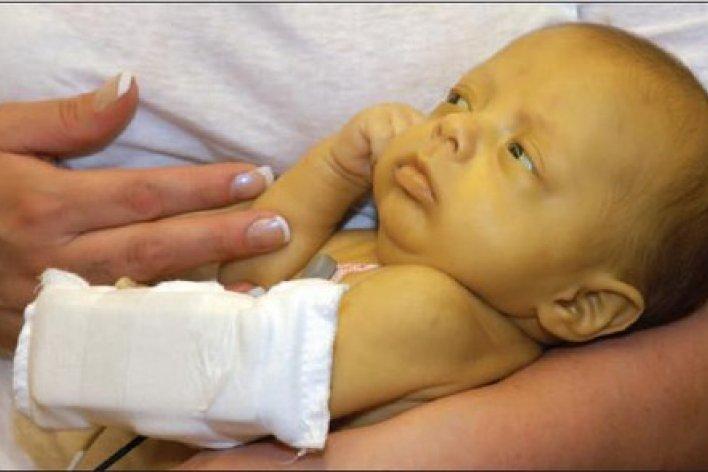 Bệnh Vàng Da Sơ Sinh Ở Trẻ Có Nguy Hiểm Không